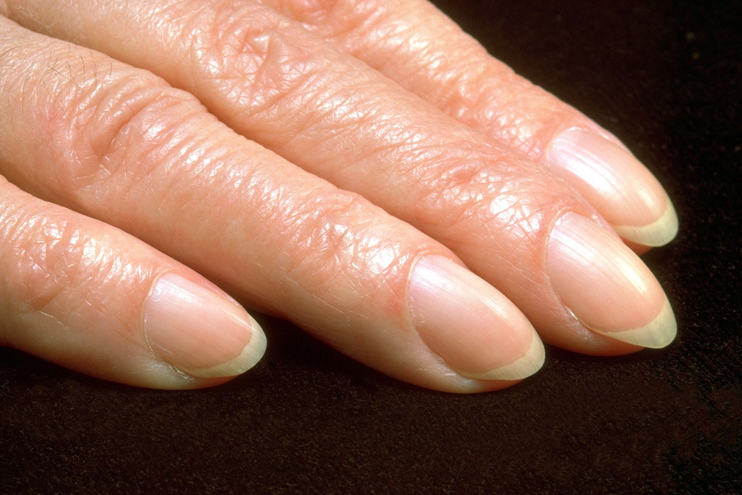 8 Warnings Your Nails Give You | Slice of Health